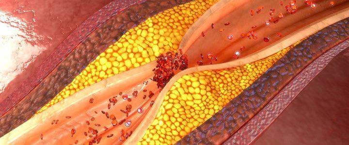 Il colesterolo nemico numero uno? Vediamo come sconfiggerlo